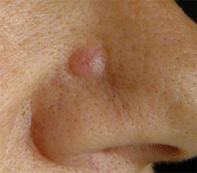 Dermatología Oncológica - Carcinoma Basocelular