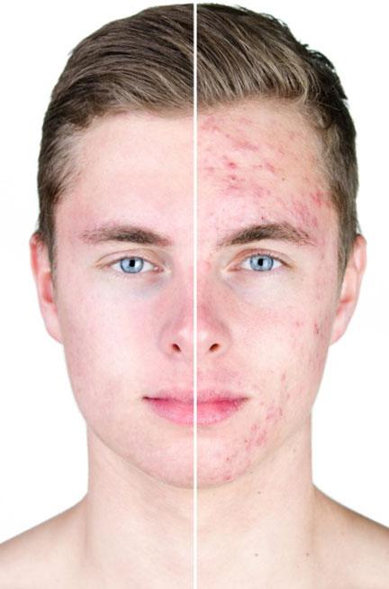 Dermatología Clínica - Acné