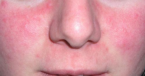 Dermatología Clínica - Rosacea