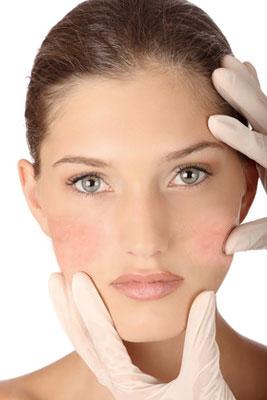 Dermatologic - Cuperosis