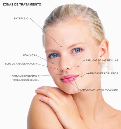 Lifting no quirúrgico con rellenos faciales