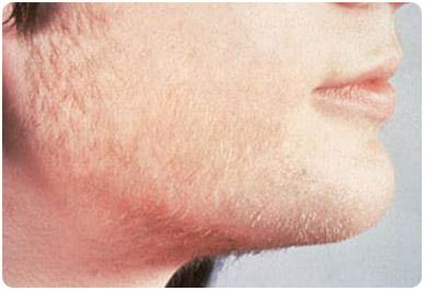 Dermatologia hirsutismo en Quito