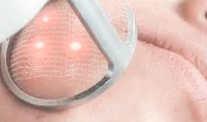 Tensado facial con laser